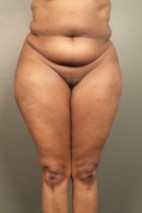 Before Photo - Liposuction - Case #13680 - Abdominoplasty with Liposuction to Hips and Flanks, Thighs - Frontal View