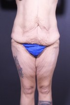Before Photo - Plastic Surgery After Dramatic Weight Loss - Case #13786 - Bodylift - Frontal View