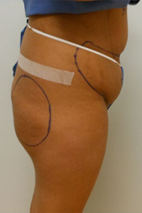 Before Photo - Buttock Augmentation - Case #13929 - Buttock Augmenation with implants and liposuction of the abdomen - Lateral View