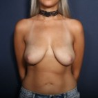 Before Photo - Breast Lift - Case #13951 - 25 Years Old Female - Frontal View