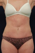 After Photo - Tummy Tuck - Case #14054 - Mini-Abdominoplasty - Frontal View