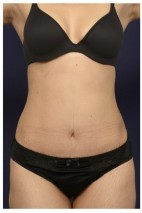 After Photo - Tummy Tuck - Case #14056 - Abdominoplasty - Frontal View