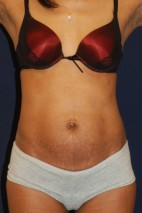 Before Photo - Tummy Tuck - Case #14057 - Extended Mini-Abdominoplasty - Frontal View