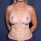 After Photo - Breast Revision - Case #14061 - 52 years old female  - Frontal View