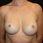 After Photo - Breast Augmentation - Case #14086 - Breast Augmentation - 26 year old female - Frontal View