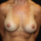 After Photo - Breast Revision - Case #14102 - Breast Implant Exchange - 44 year old female. - Frontal View