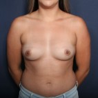 Before Photo - Breast Augmentation - Case #14215 - 25 Years Old Female - Frontal View