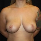 After Photo - Breast Lift - Case #14277 - Breast Lift - 37 year old female - Frontal View