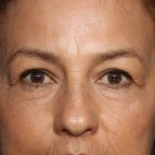 Before Photo - Eyelid Surgery - Case #14316 - 62 years old female - 7 Months Post-Op  - Frontal View