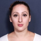 Before Photo - Nose Surgery - Case #14317 - 35 years old female - 2 and Half Months Post-Op  - Frontal View