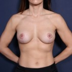 After Photo - Breast Lift - Case #14338 - 31 years old female  - Frontal View