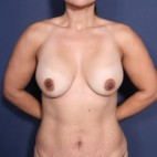 Before Photo - Breast Revision - Case #14341 - 41 years old female - Frontal View