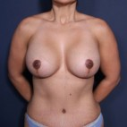 After Photo - Breast Revision - Case #14341 - 41 years old female - Frontal View