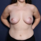 After Photo - Breast Lift - Case #14342 - 25 Years Old Female - Frontal View