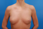 Before Photo - Breast Augmentation - Case #14606 - Natural primary breast augmentation to a full C breast - Frontal View
