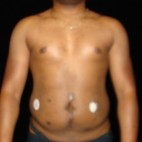 Before Photo - Liposuction - Case #14626 - Abdominal Etching - Frontal View