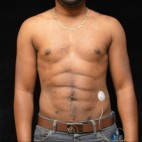 After Photo - Liposuction - Case #14626 - Abdominal Etching - Frontal View