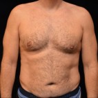 Before Photo - Liposuction - Case #14627 - Abdominal Etching - Frontal View
