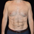 After Photo - Liposuction - Case #14627 - Abdominal Etching - Frontal View