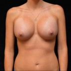 After Photo - Breast Augmentation - Case #14636 - Breast Implants - Frontal View
