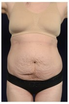 Before Photo - Tummy Tuck - Case #14774 - Abdominoplasty - Frontal View