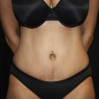 After Photo - Tummy Tuck - Case #14780 - Abdominoplasty - 44 year old female - Frontal View