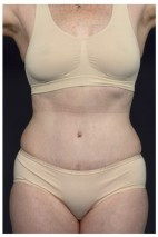 After Photo - Tummy Tuck - Case #14783 - Abdominoplasty - Frontal View