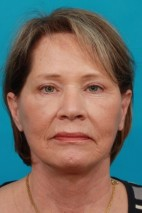 After Photo - Facial Rejuvenation - Case #14828 - Brow & Face lift - Frontal View