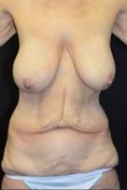 Before Photo - Tummy Tuck - Case #14834 - Frontal View