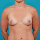 Before Photo - Breast Augmentation - Case #14840 - Silicone Breast Augmentation - Frontal View