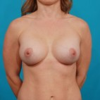 After Photo - Breast Augmentation - Case #14840 - Silicone Breast Augmentation - Frontal View