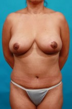 After Photo - Mommy Makeover - Case #14849 - TT / BL - Frontal View