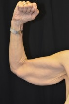 Before Photo - Upper Arm Lift - Case #14831 - Frontal View