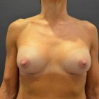 After Photo - Breast Augmentation - Case #14865 - Frontal View
