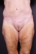 After Photo - Tummy Tuck - Case #15098 - Skin-only Abdominoplasty - Frontal View