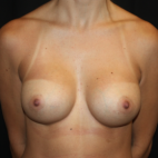 After Photo - Breast Augmentation - Case #15108 - Breast Augmentation - 32 year old female - Frontal View