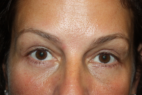 After Photo - Eyelid Surgery - Case #15122 - Blepharoplasty and Browlift - 49 year old female - Frontal View