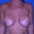 After Photo - Breast Lift - Case #15996 - Breast Lift with Aug (Silicone Implants)  - Frontal View