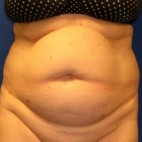 Before Photo - Tummy Tuck - Case #15999 - Frontal View