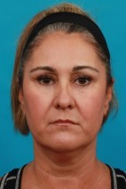 Before Photo - Neck Lift - Case #16005 - Neck Lift AFTER Kybella - Frontal View