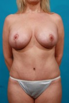 After Photo - Mommy Makeover - Case #16006 - BA / BL / TT / SAL - Frontal View