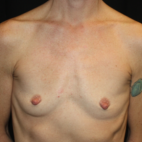 Before Photo - Breast Augmentation - Case #16011 - Breast Augmentation - 40 year old female - Frontal View