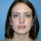 Before Photo - Nose Surgery - Case #16235 - Rhinoplasty - Frontal View