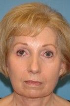 After Photo - Facelift - Case #16252 - Facelift with Necklift and Browlift - Frontal View