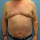 Before Photo - Liposuction - Case #16255 - Power-Assisted and Laser Assisted Body Contouring- Mid Back, Upper Back, Axilla, Chest, Hips-Flanks - Frontal View