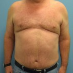 After Photo - Liposuction - Case #16255 - Power-Assisted and Laser Assisted Body Contouring- Mid Back, Upper Back, Axilla, Chest, Hips-Flanks - Frontal View