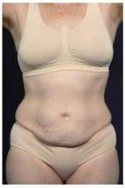 Before Photo - Tummy Tuck - Case #16360 - 50 year old woman treated with an Abdominoplasty - Frontal View