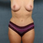 After Photo - Mommy Makeover - Case #16391 - Mommy makeover with volume preserving breast lift and tummy tuck to correct post pregnancy changes  - Frontal View