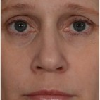 After Photo - Fillers - Case #16481 - 50 year old woman treated with nonsurgical rhinoplasty - Frontal View