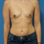 Before Photo - Breast Augmentation - Case #16562 - Submuscular Breast Augmentation 375cc Silicone Gel Implants - Frontal View